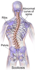 Scoliosis may be preventable